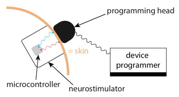 secure brain implants